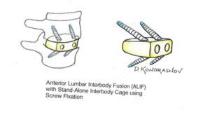 anterior-lumbar-interbody-fusion-with-stand-alone-interbody-cage