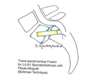 trans-sacral-lumbar-fusion